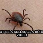 ÍGY JUT BE A KULLANCS A BŐRÖDBE! – VIDEÓ