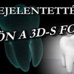 BEJELENTETTÉK! JÖN A 3D-S FOGNYOMTATÁSSAL KÉSZÜLT FOG, VAGY KOMPLETT FOGSOR!